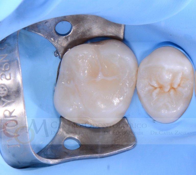 Il dente ricostruito