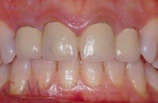 Infiammazione cronica parodontale