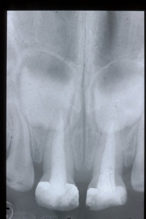 L'endodonzia pediatrica