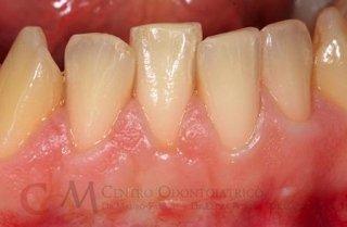 Intervento di plastica parodontale