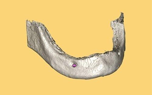 mandibola tridimensionale