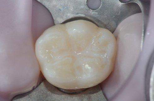 Il dente sigillato
