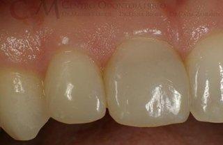 restauri dentali