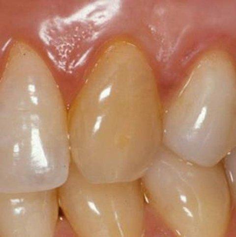 sbiancamento dentale - prima