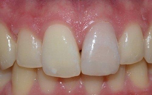 Discromia dente restaurato per probabile necrosi post traumatica.