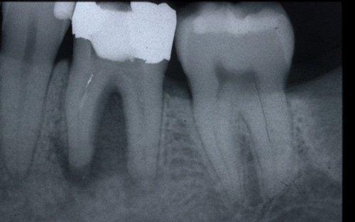 Parodontite apicale cronica molto estesa.