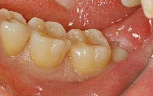 terzo molare inferiore