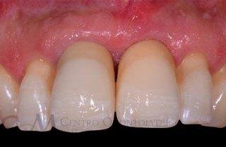 eliminazione della patologia parodontale