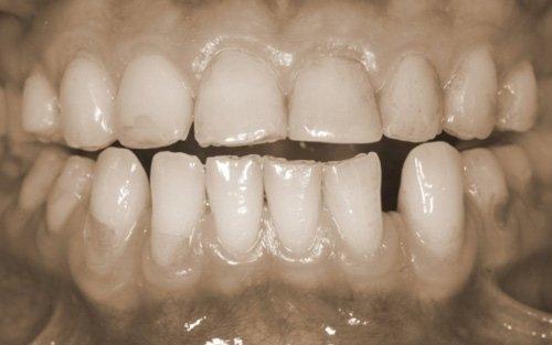 Usura ed erosione dentale su paziente ex anoressica.