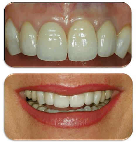 sostituzione denti