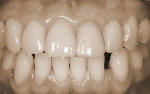 Anche in questo caso il trattamento conservativo è stato solo addittivo, senza alcun sacrificio di sostanza dentale sana.