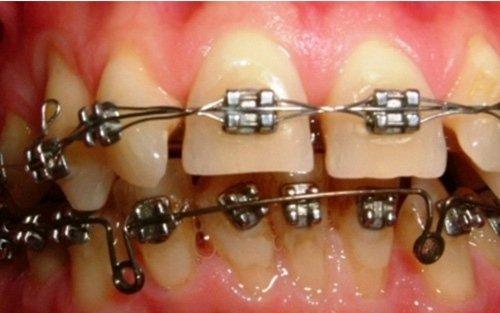 Il paziente con dispositivo fisso e brackets metallici. I brackets possono essere anche in materiale ceramico o in resina, con un impatto estetico decisamente migliore.