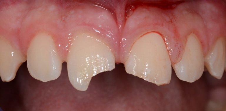 Trauma dentario in seguito a caduta durante l