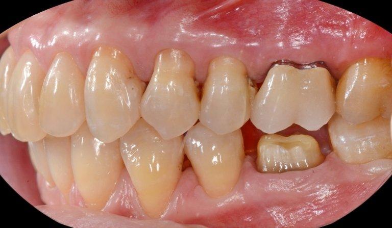 Primo molare inferiore di destra preparato allo stato di moncone proteico