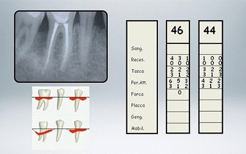radiografia risultati terapia con amelogenine