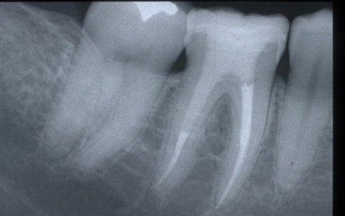 Il dente devitalizzato e restaurato con perno in fibra