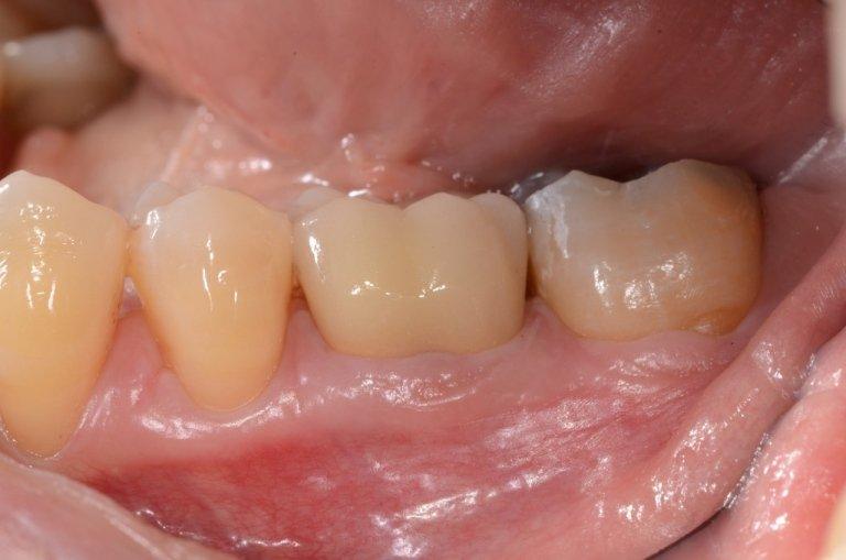 Corona definitiva in ossido di zirconio e rivestimento in ceramica (Laboratorio Mignani)
