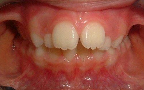 caso classe due scheletrica e dentale