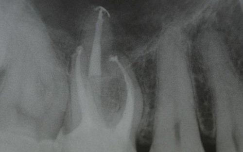 Anche in casi così estremi si può ottenere una guarigione completa e il mantenimento a lungo termine del dente.