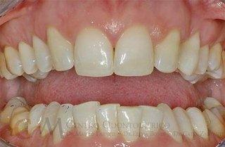 caso di denti laterali