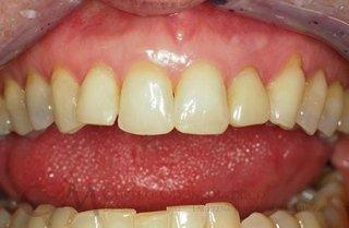 odontoiatria invisibile