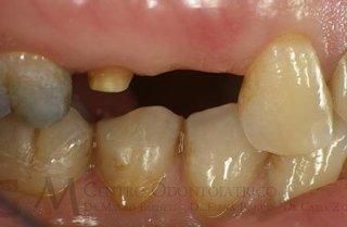 Mancanza del primo premolare superiore