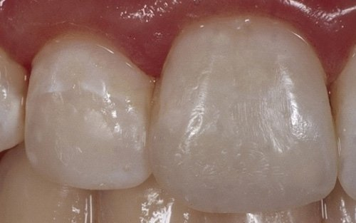 Buona integrazione del restauro con il dente naturale.
