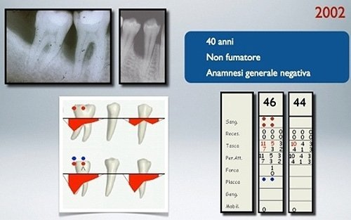 radiografia gravi difetti infraossei