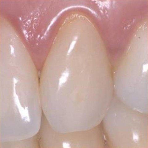 sbiancamento dentale - dopo