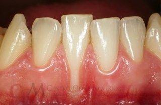 Chirurgia plastica parodontale