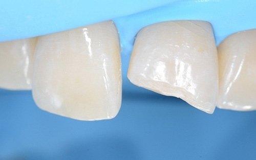 I denti ripuliti e protetti dalla diga.