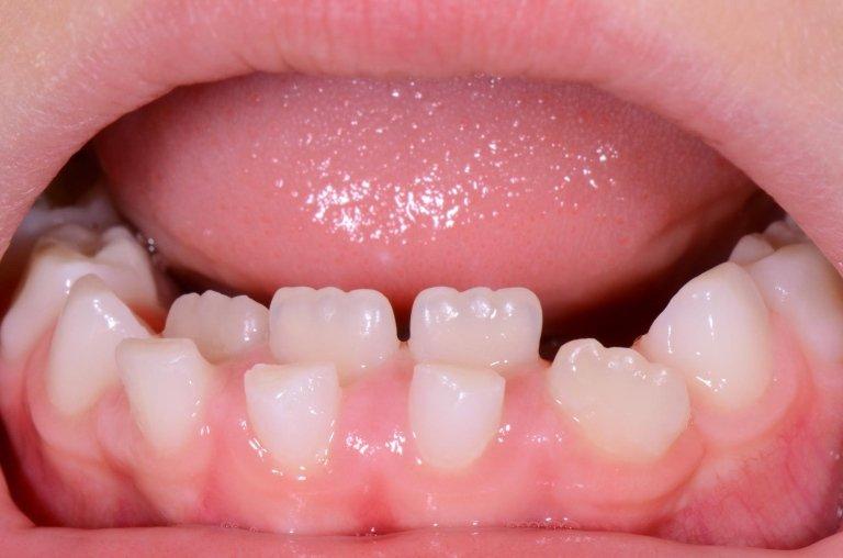 Spesso accade che uno o più denti permanenti erompano nel cavo orale del bambino, senza che i denti da latte cadano. Questa condizione non deve assolutamente preoccupare!