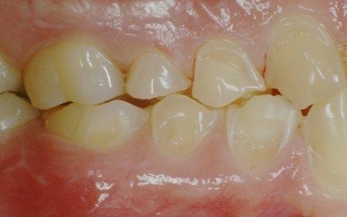 Erosione dentale diffusa