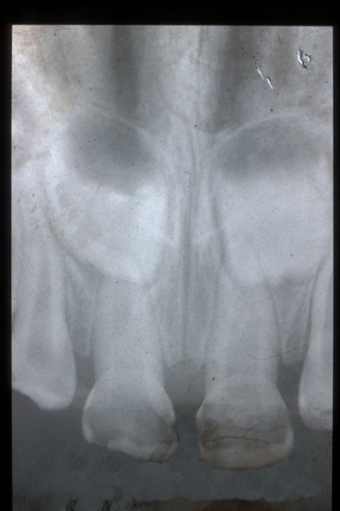 Endodonzia pediatrica