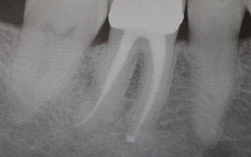 La guarigione del granuloma viene controllata sia clinicamente che mediante radiografie endorali.