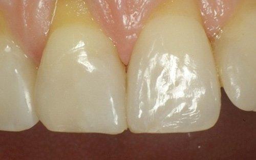 I denti restaurati dopo la rimozione della diga.