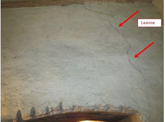 Lesion detail