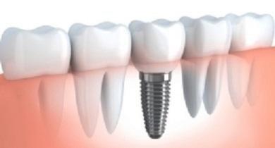 sbiancamento e pulizia dentale