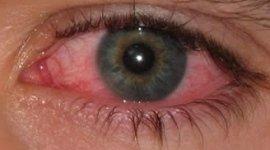 patologie della vista, oculistica infantile, esami per bambini