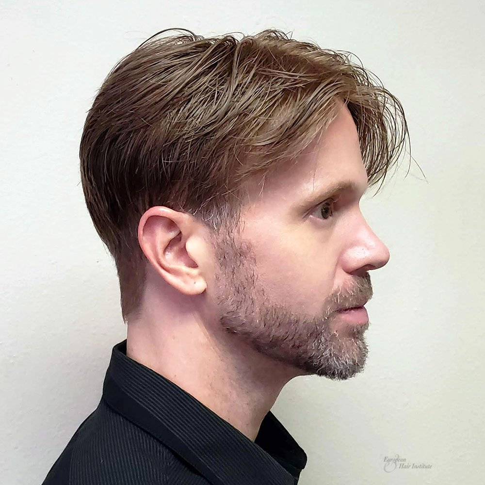 Hair Pieces And Non Surgical Hair Replacement For Men