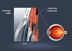 Dry Eye Sendrome