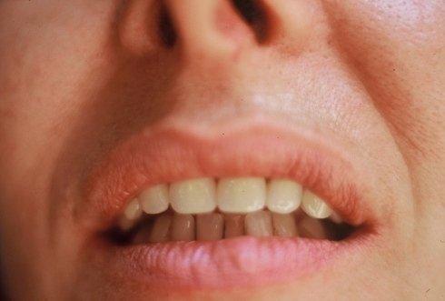 Ortodonzia estetica e funzionale