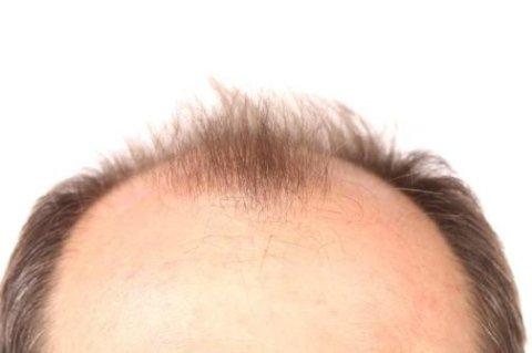 alopecia androgenetica PRP Alessandria, alopecia androgenetica PRP La Spezia
