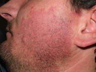 trattamento angioma viso