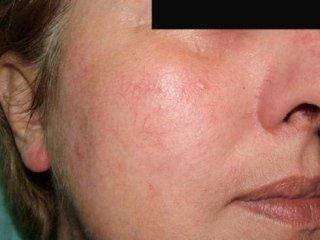 Couperose trattamento Laser ad argon Alessandria, Couperose trattamento Laser ad argon La spezia