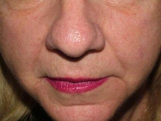 trattamenti viso donna