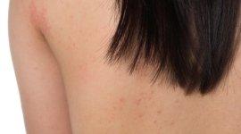 orticaria, dermatite, eczema