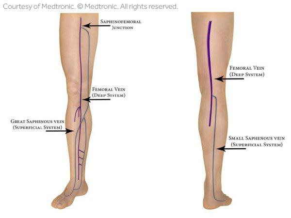Leg Vein Anatomy 101