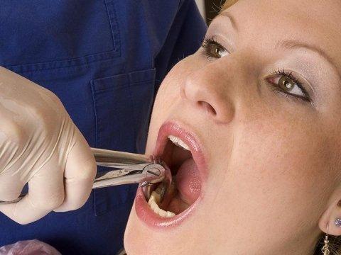 estrazioni dentali