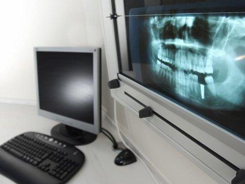 chirurgia ossea orale